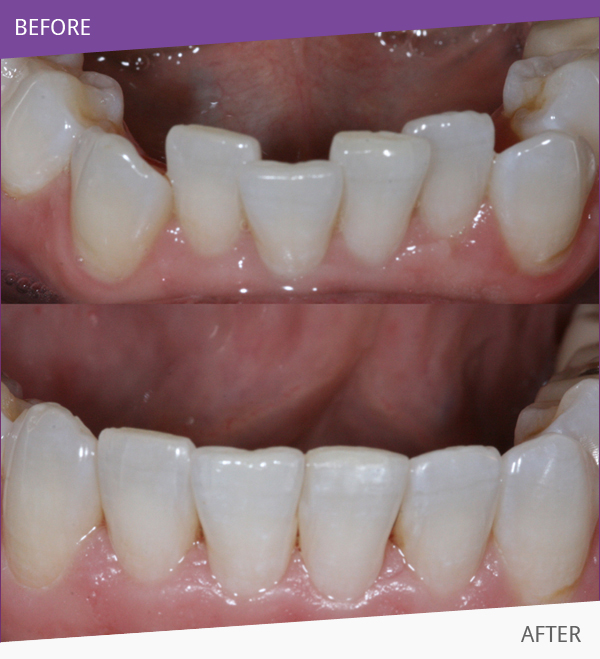 Before having Teeth Straightening treatment