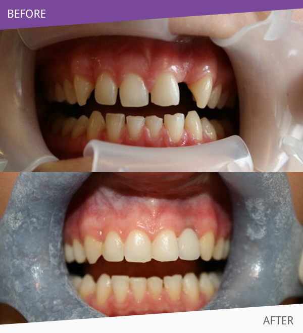 After having Teeth Straightening treatment