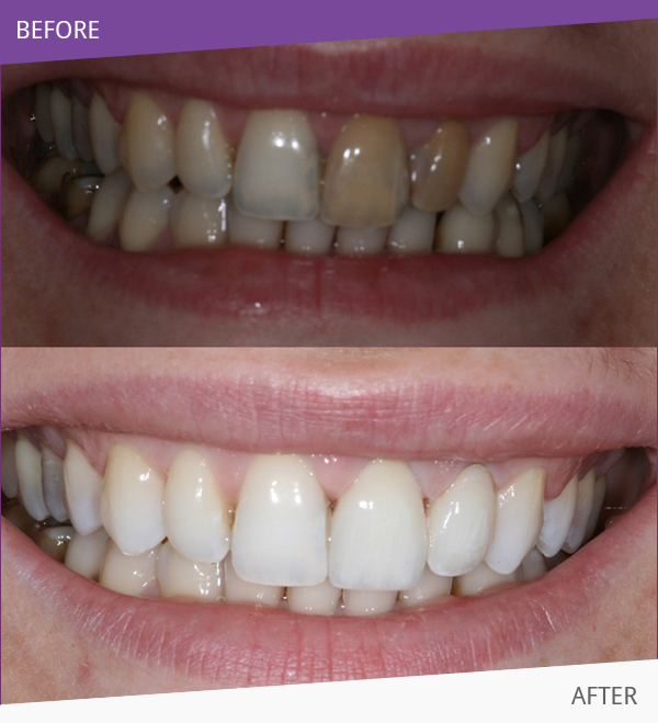 After having Cosmetic Dentistry treatment