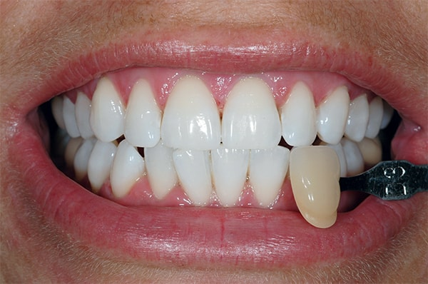 After having Teeth Whitening treatment