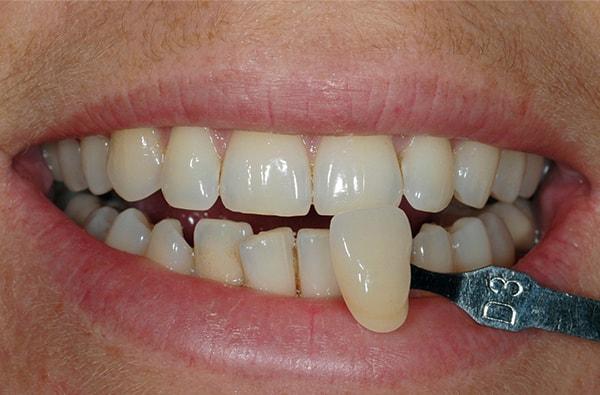 Before having Teeth Whitening treatment