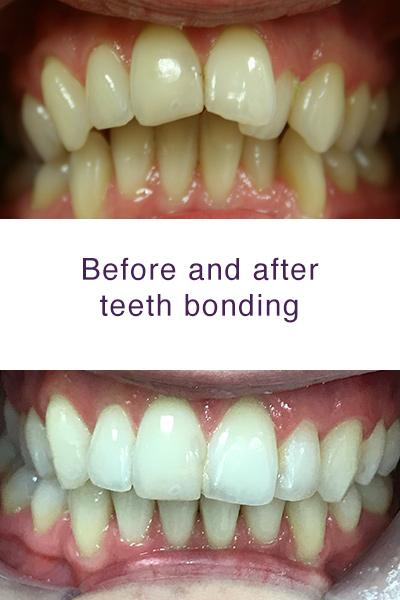 Teeth Bonding in Milton Keynes